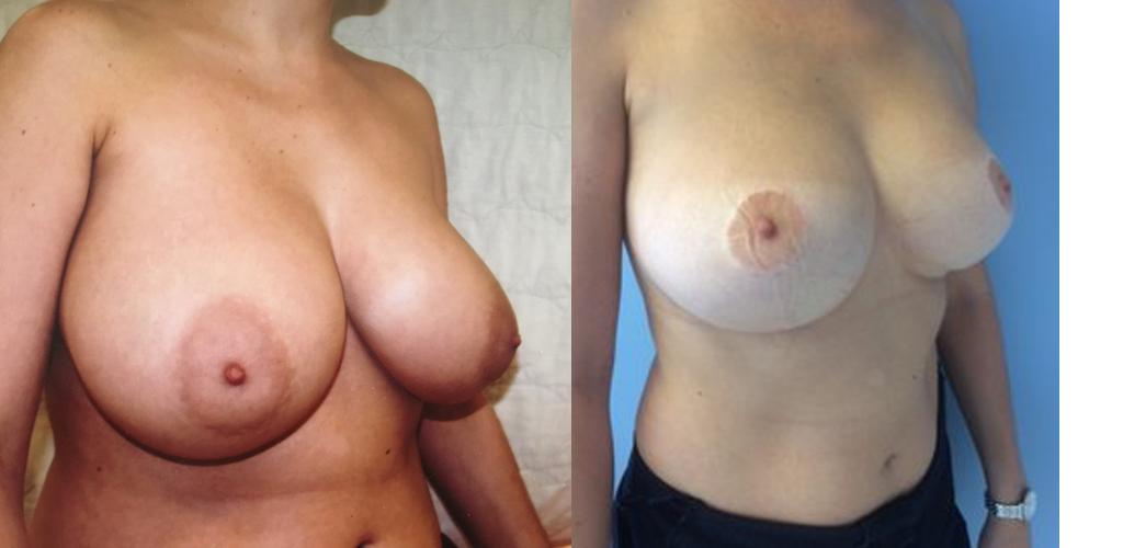 Qu'est-ce que l'hypertrophie mammaire ?