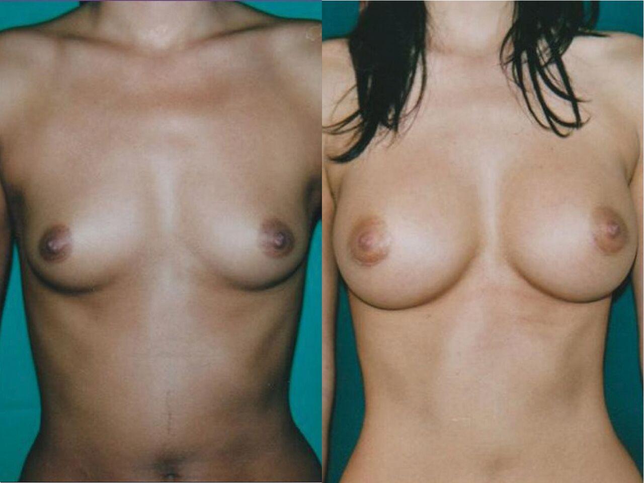 Implants Mammaire Chirurgie Esthetique Pose Implans Mammaires Montreux
