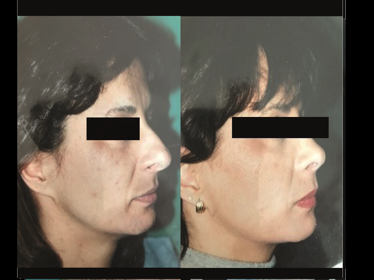 Rhinoplastie Chirurgie Esthetique Rhinoplastie Nyon et Montreux