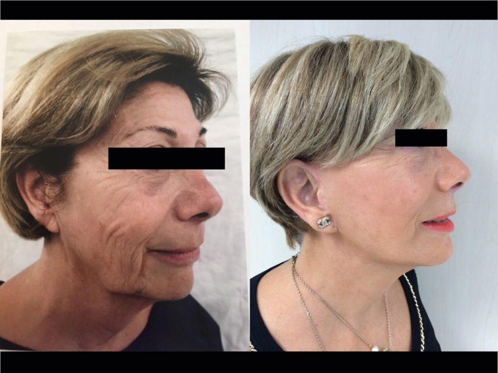 Cervico-Facial Chirurgie Esthetique Lifting Visage Montreux