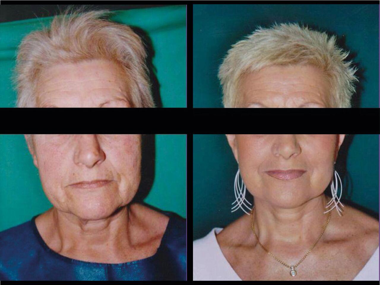 Cervico-Facial Chirurgie Esthetique Lifting Visage Nyon