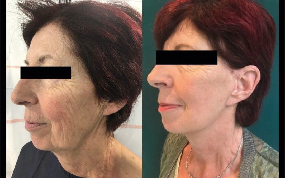 Cervico-Facial Chirurgien Esthetique Lifting Visage Montreux