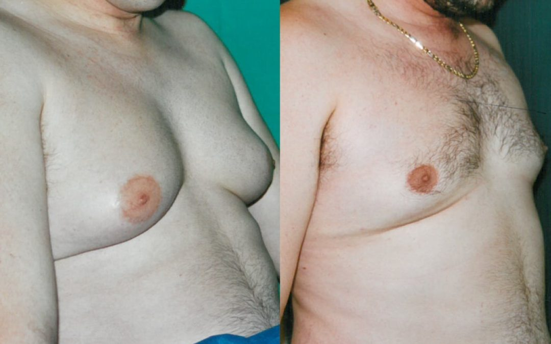 Gynecomastie Homme Chirurgien Esthetique Lipussuccion lipoaspiration Montreux