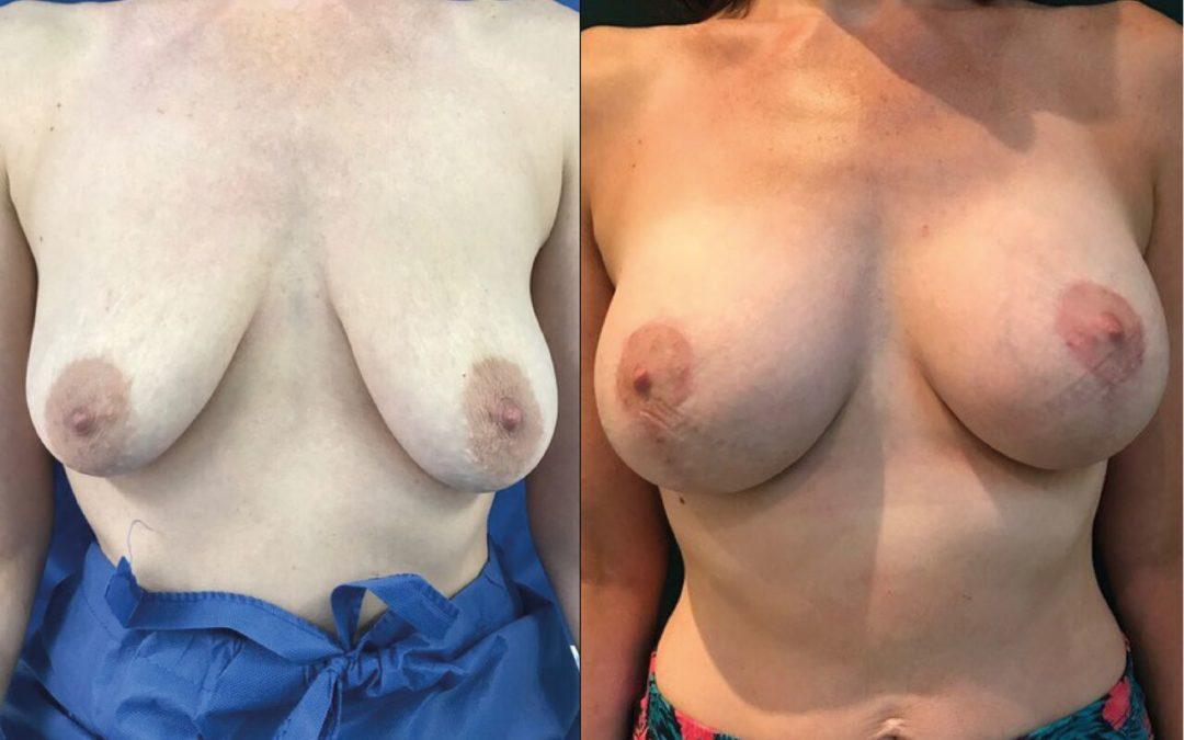 IM Ptose Chirurgien Esthetique Lifting des Seins -Ptose mamaire Montreux