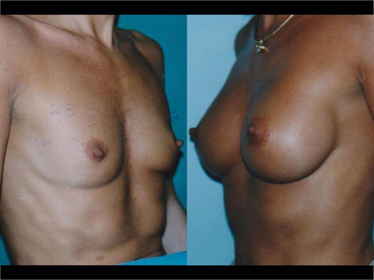 Implants Mammaire Chirurgien Esthetique Pose Implants mammaires Montreux