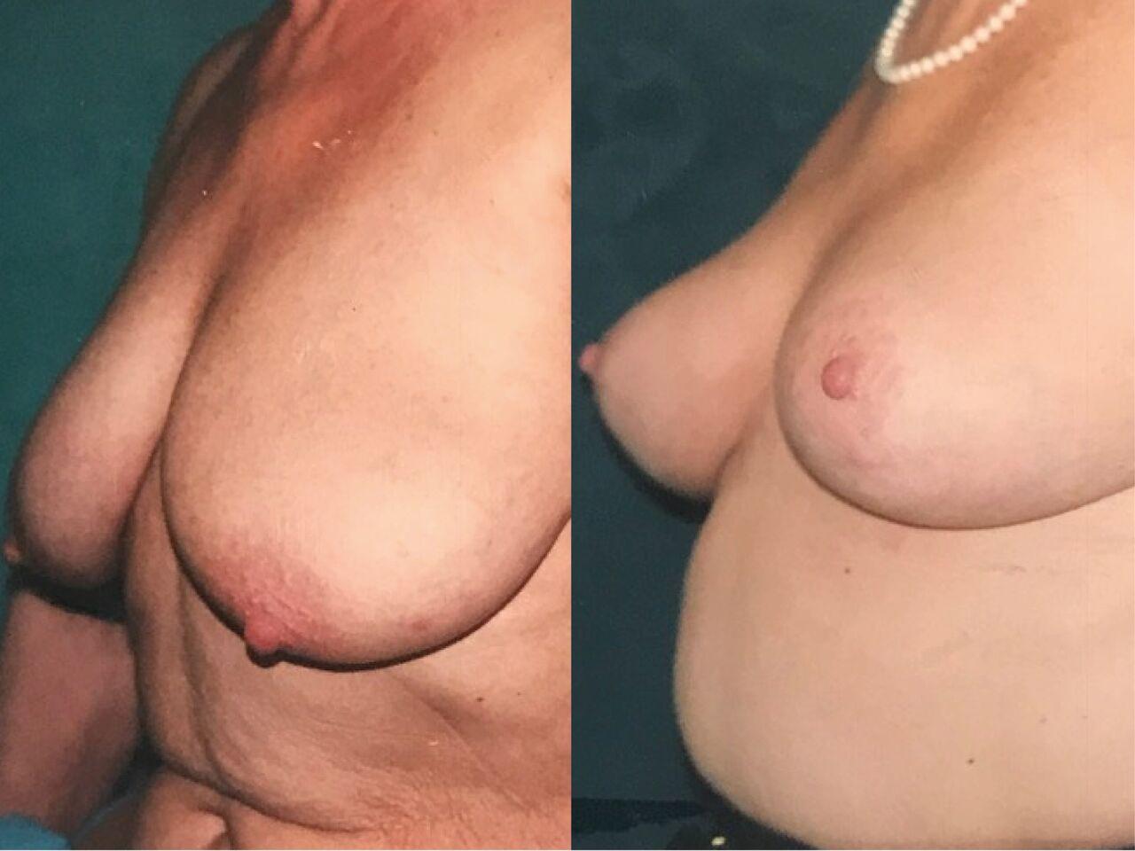 Lifting des seins Chirurgie Esthetique Lifting des Seins Ptose Mammaire Nyon
