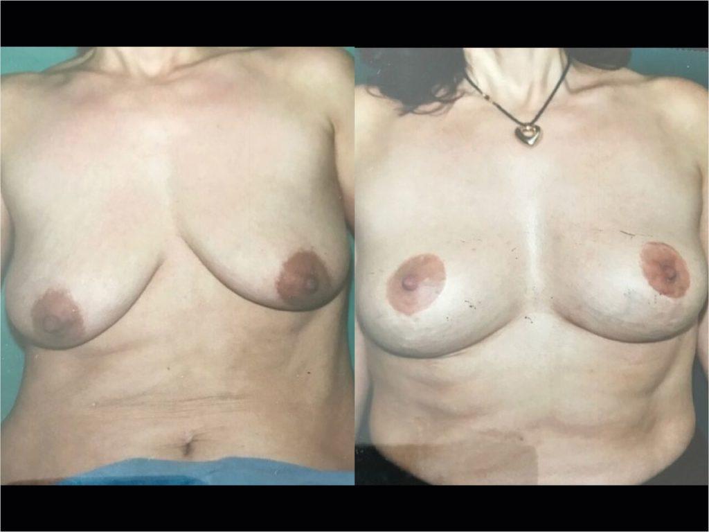 Lifting seins Chirurgie Esthetique Lifting des Seins -Ptose mammaire Montreux