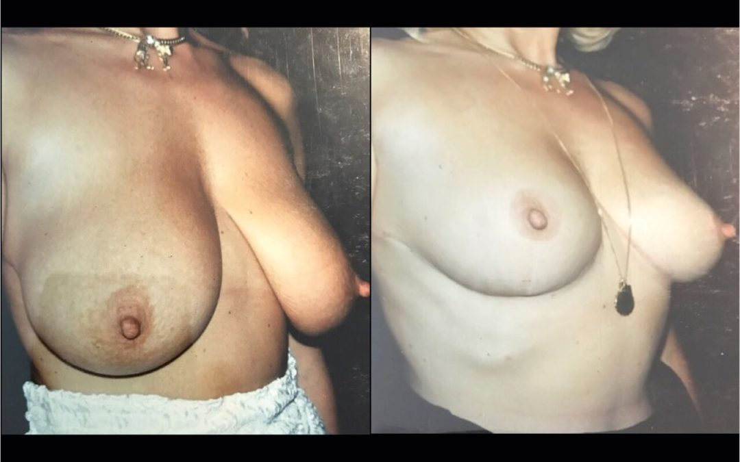 Lifting seins Chirurgie Esthetique Lifting des Seins -Ptose mammaire Nyon