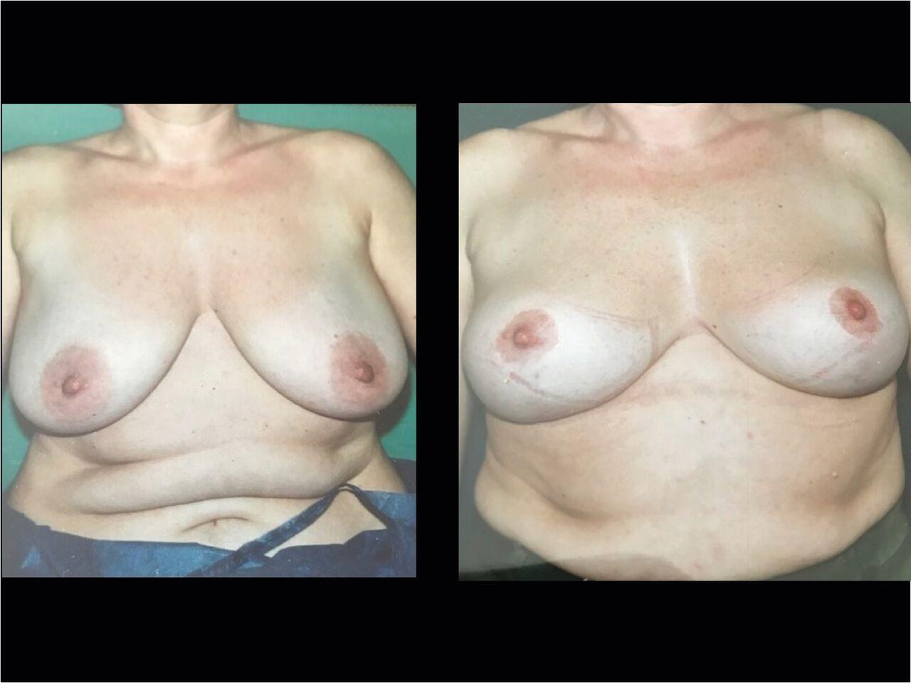 Lifting seins Chirurgien Esthetique Lifting des Seins Ptose mammaire Montreux