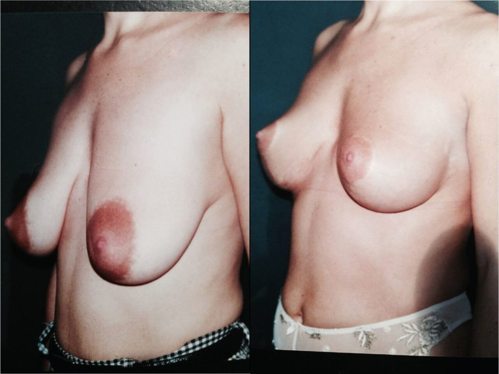 Lifting seins Chirurgien Esthetique Lifting des Seins Ptose mammaire Nyon