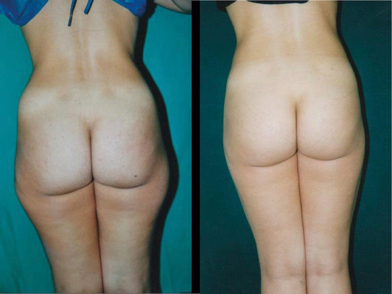 Lipo Aspiration Chirurgie Esthetique Lipusuccion - Lipo Aspiration Nyon