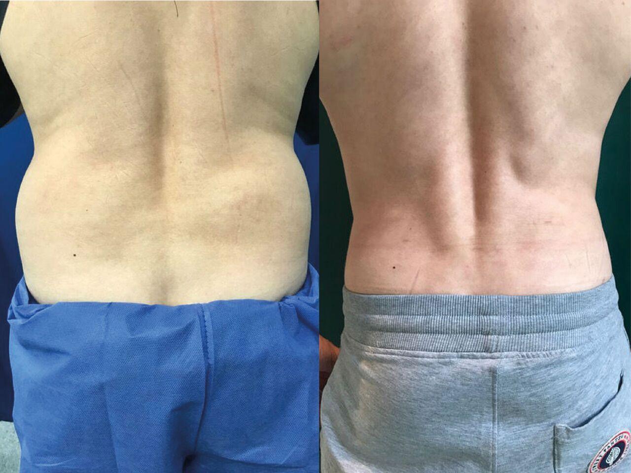Liposuccion Hanches Homme Chirurgie Esthetique Lipoaspiration Montreux