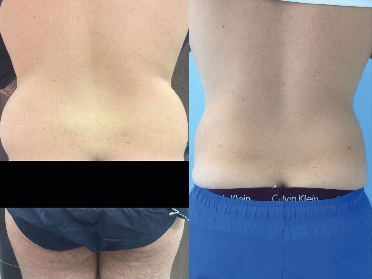 Liposuccion Hanches Homme Chirurgie Esthetique-Lipoaspiration Nyon
