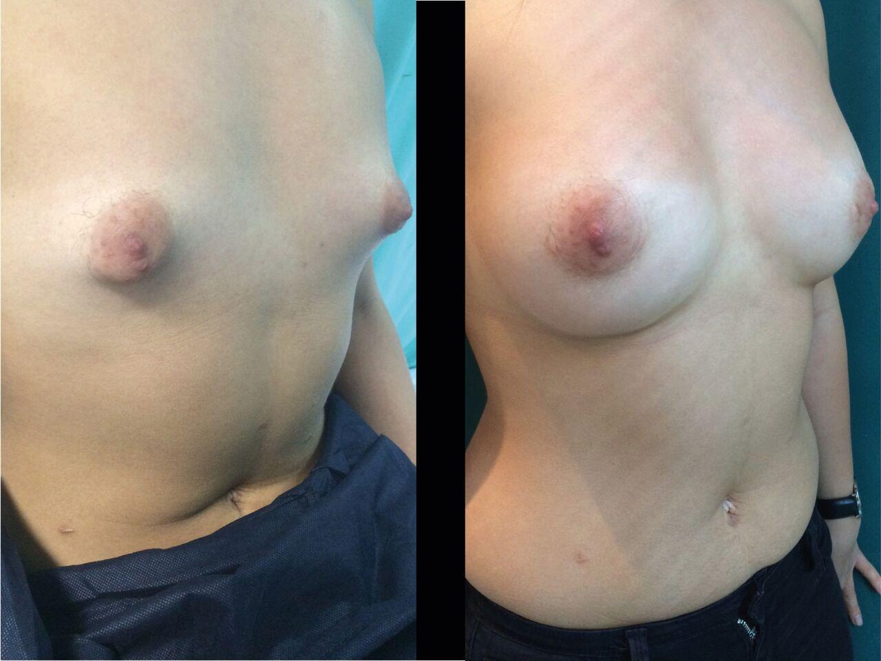 Pose Mammaire Chirurgie Esthetique Pose Implants mammaires Nyon