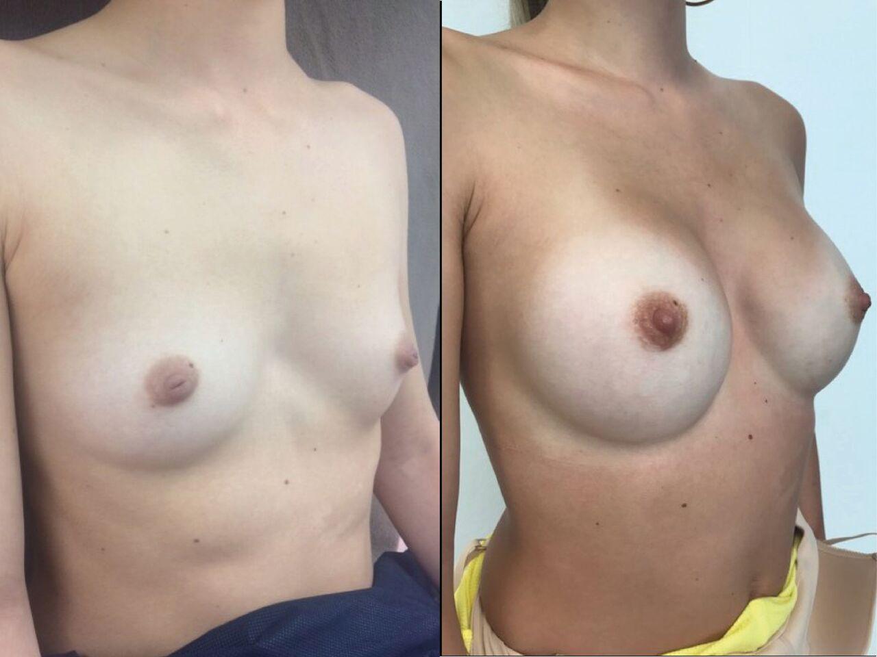 Pose Mammaire Chirurgien Esthetique Pose Implants Mammaires Montreux