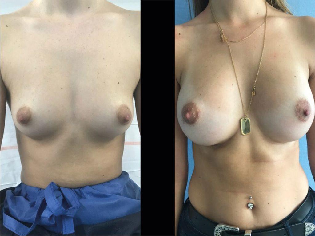 Pose Mammaire Chirurgien Esthetique Pose Implants mammaires Nyon