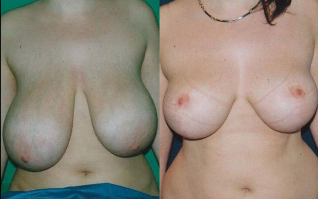 Reduction Mammaire Chirurgie Esthetique Reduction mammaire Montreux