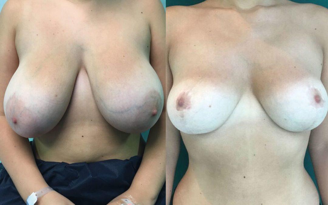 Reduction Mammaire Chirurgie Esthetique Reduction mammaire Nyon