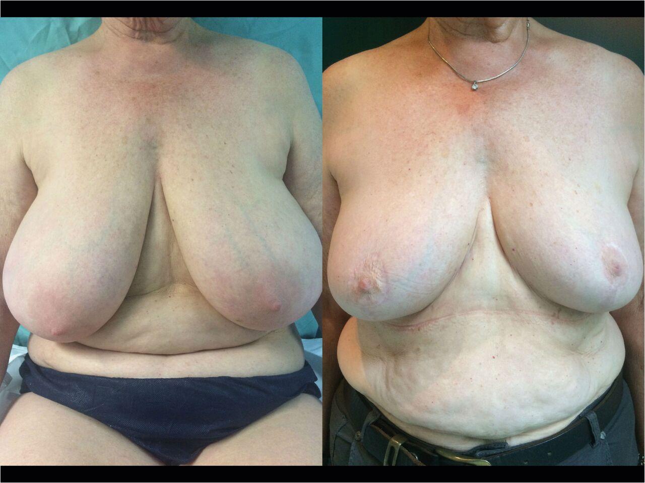 Reduction Mammaire Chirurgien Esthetique Reduction mammaire Nyon