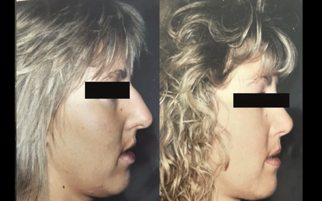 Rhinoplastie Chirurgien Esthetique Rhinoplastie Nyon et Montreux