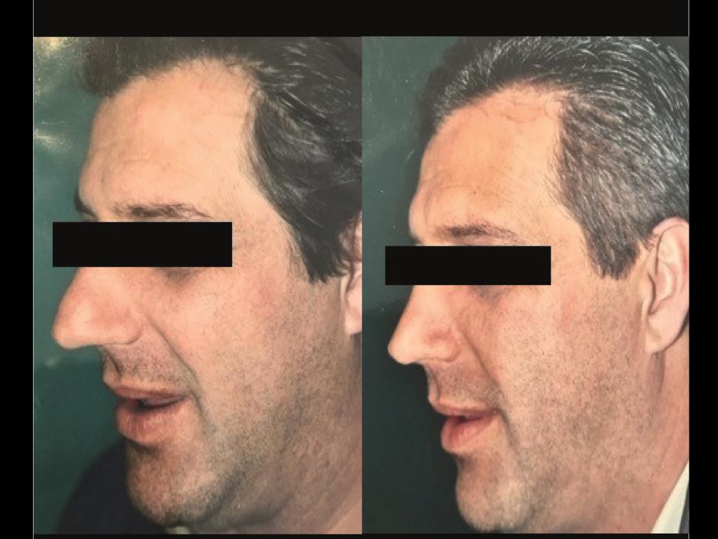 Rhinoplastie Homme Chirurgien Esthetique Rhinoplastie Montreux