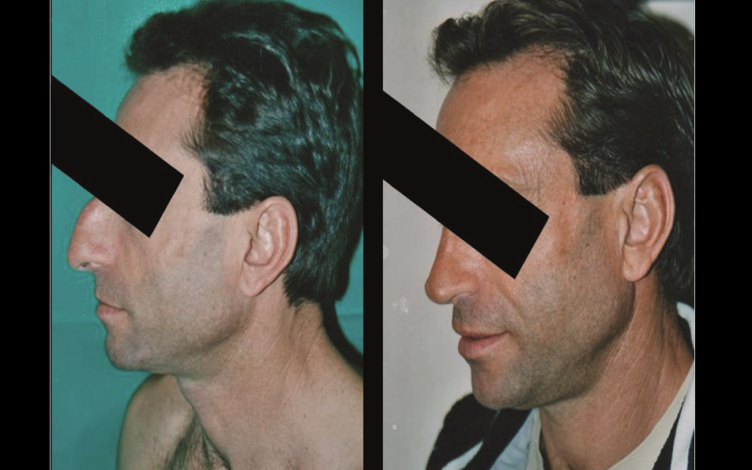 Rhinoplastie Chirurgien Esthetique Rhinoplastie Nyon