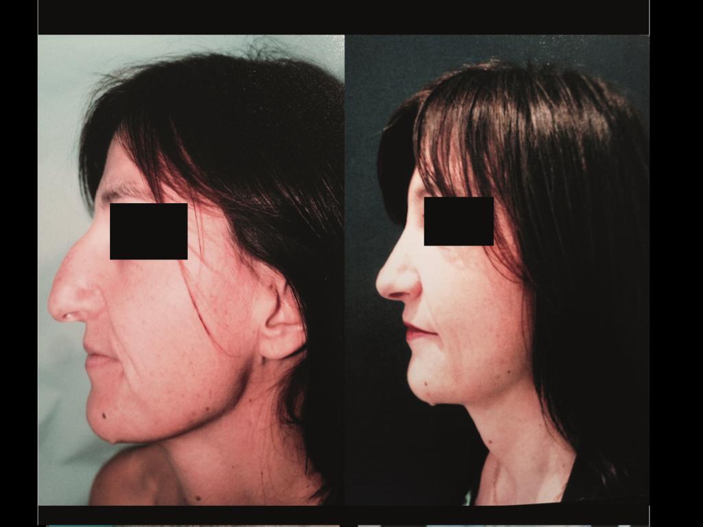 Rhinoplastie Chirurgie Esthetique Rhinoplastie Nyon