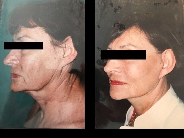 avant-apres-lifting-2-profil_sa
