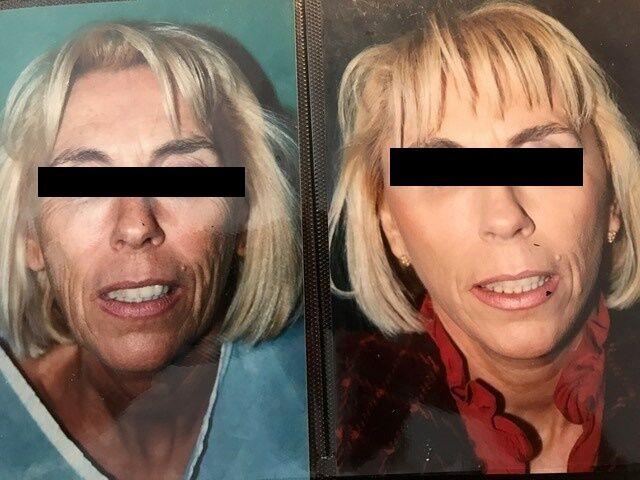 avant-apres-lifting-cervico-facial-5_sa